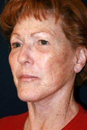 Oblique View After Facelift