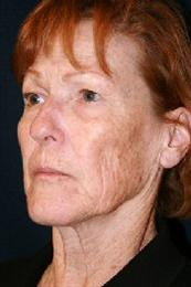 Oblique View Before Facelift