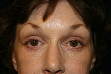 After Eyelid Lift