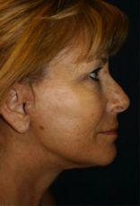 Side After Facelift Surgery