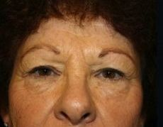 Front Before Browlift Surgery
