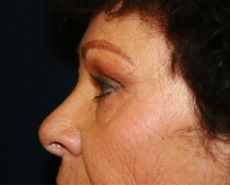 Side After Browlift Surgery