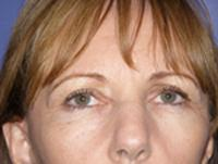 Front After Blepharoplasty and Facelift