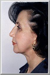Side after facelift, blepharoplasty, and chin augmentation procedure