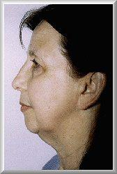 Side before facelift, blepharoplasty, and chin augmentation procedure
