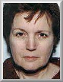 Front before facelift and blepharoplasty procedure