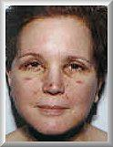 Front 2 days after facelift and blepharoplasty procedure