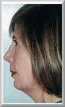 Side before facelift and blepharoplasty procedure