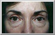 Front before blepharoplasty procedure