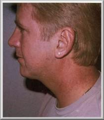 Left side after necklift