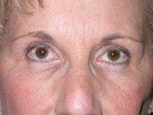 Front after browlift and blepharoplasty