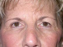 Front before browlift and blepharoplasty