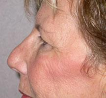 Left side before browlift and blepharoplasty