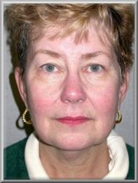 Front before facelift and blepharoplasty