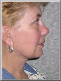 Side after facelift and blepharoplasty