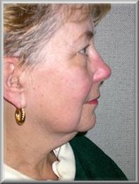 Side before facelift and blepharoplasty