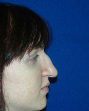 Side Before Rhinoplasty