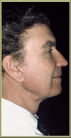 Side View After Facelift and Neck Lift