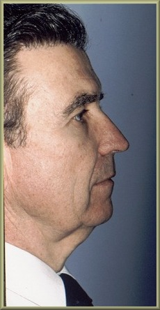 Side View Before Facelift and Neck Lift