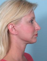 Side View After Facelift and Rhinoplasty