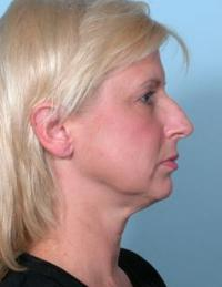Side View Before Facelift and Rhinoplasty