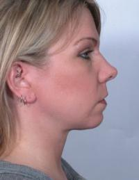 Side View After Necklift