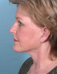 Side View After Liposuction of Neck & Blepharoplasty