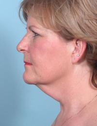 Side View Before Liposuction of Neck & Blepharoplasty