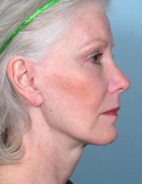 Side View After Blepharoplasty & TCA Peel Lips