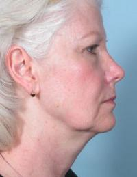 Side View Before Blepharoplasty & TCA Peel Lips