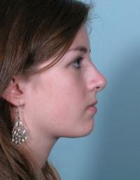 Side View After Rhinoplasty