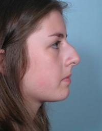 Side View Before Rhinoplasty
