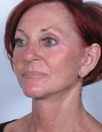 Oblique View After Brow Lift and Blepharoplasty