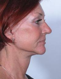 Side View After Periolar Dermabrasion