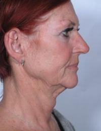 Side View Before Periolar Dermabrasion